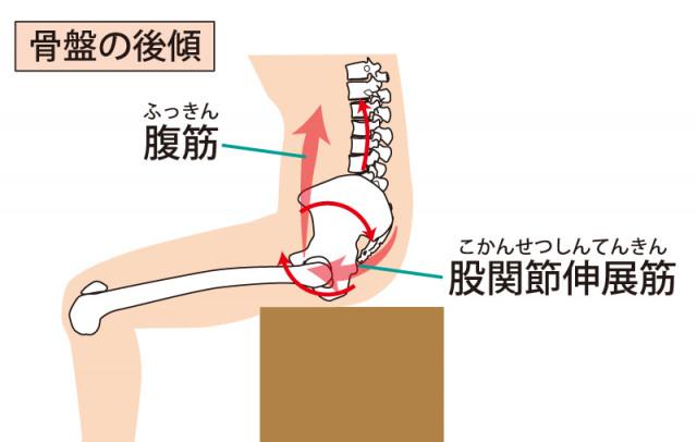椎間板ヘルニア 骨盤 背骨